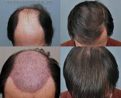 Hair Transplant Singapore - Before And After Image